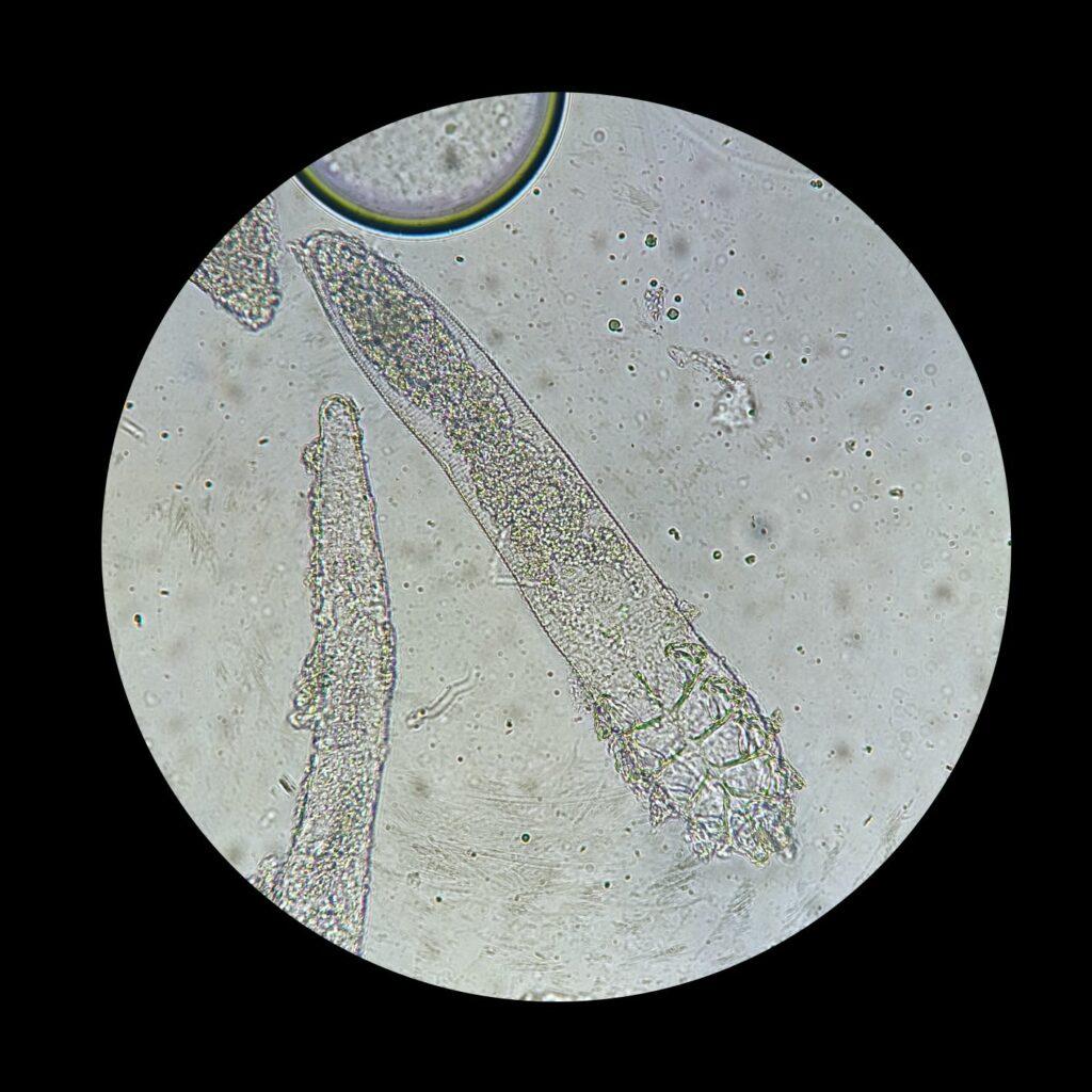 Demodex mites under a microscope